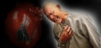 Waspadai Aritmia Pemicu Kematian Mendadak pada Manusia