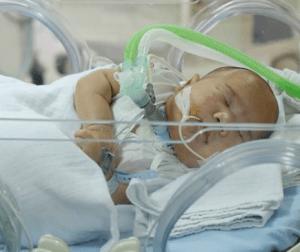 Kenali Trisomy 13 Sindrom Mematikan yang Merenggut Nyawa Adam Fabumi