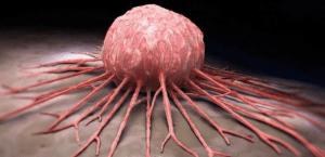 10 Jenis Kanker Mematikan yang Perlu Anda Ketahui