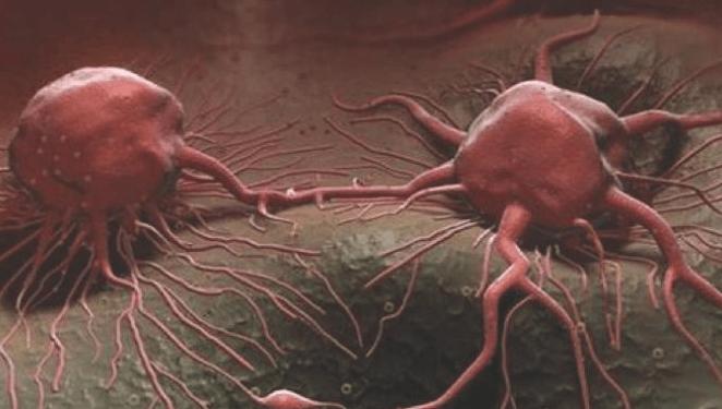 6 Fakta Unik tentang Sel Kanker yang Wajib Anda Baca