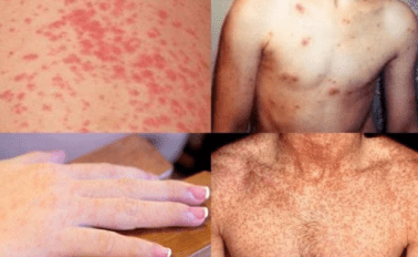 Waspadai Penyakit Kawasaki pada Anak Gejala dan Penyebabnya