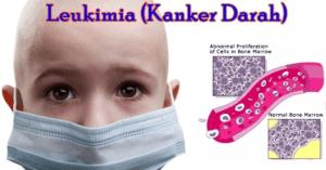 Kenali Penyakit Kanker Darah Leukimia pada Anak, Ciri-ciri serta GejalanyAa
