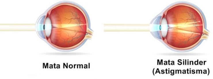miopie hipermetropie și astigmatism dioptrii corecte ale vederii