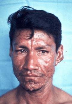 Immigrant leper