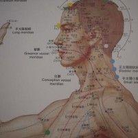 Acupunctuur en schouderklachten Amsterdam