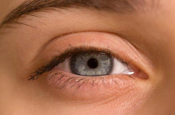 اسباب السواد تحت العين وكيفية علاجه