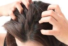 Photo of وصفات طبيعية لعلاج الحكة وقشرة الرأس