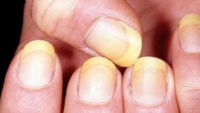 Photo of أعراض الإصابة بمرض الكبد