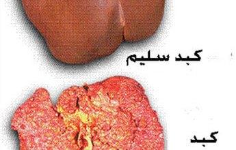 Photo of أسباب وأعراض سرطان الكبد وعلاجة