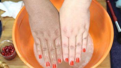Photo of وصفات طبيعية لتبييض اليدين