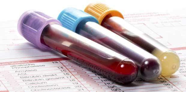 Blood test analysis fitness