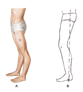 joelho hiperextendido e flexo
