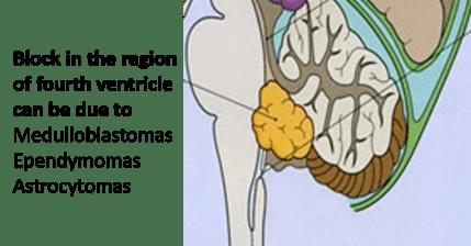 fourth ventricle block - internal hydrocephalus