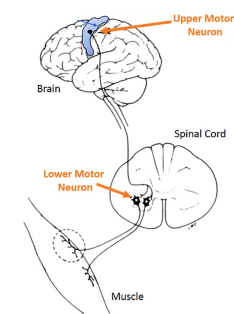 Upper and lower motor neurons