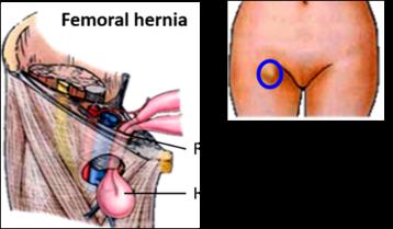 Femoral Sheath -