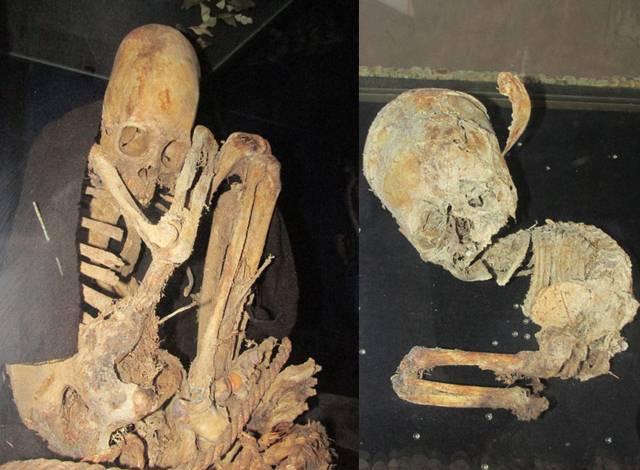 Unusual features elongated skulls