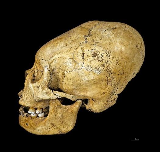 """Homo sapiens sapiens – Deformidad craneal provocada intencionadamente (""""deformidad peruana""""), Cultura Proto-Nazca (200 a. C. – 100 a. C.), región de Nazca, Perú. Museo de Toulouse, Francia. (Didier Descouens/CC BY-SA 4.0)"""