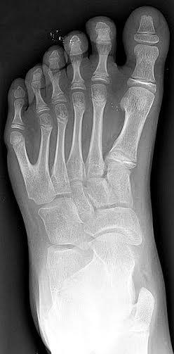 Radiografía de un pie izquierdo con polidactilia. La polidactilia (número anormal de dedos en las extremidades) parece haber sido un patrón habitual entre las razas de gigantes. (Public Domain)