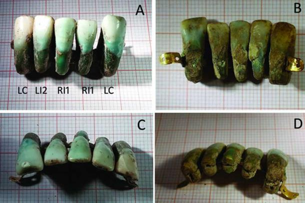 The set of dentures discovered in Italy. Credit: University of Pisa