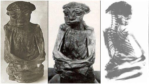 Photos and x-ray of the San Pedro Mummy