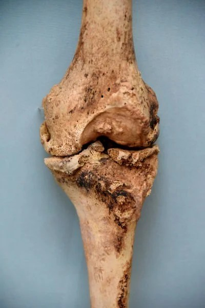 Arthritis of a Knee Joint of a Mummy