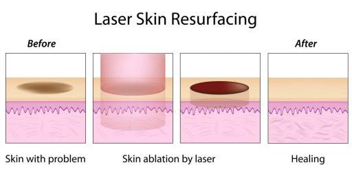 illustration of laser treatment