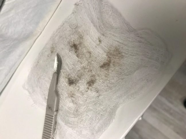 Dead skin cells removed by dermaplaning