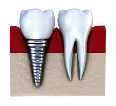 illustration of dental implants