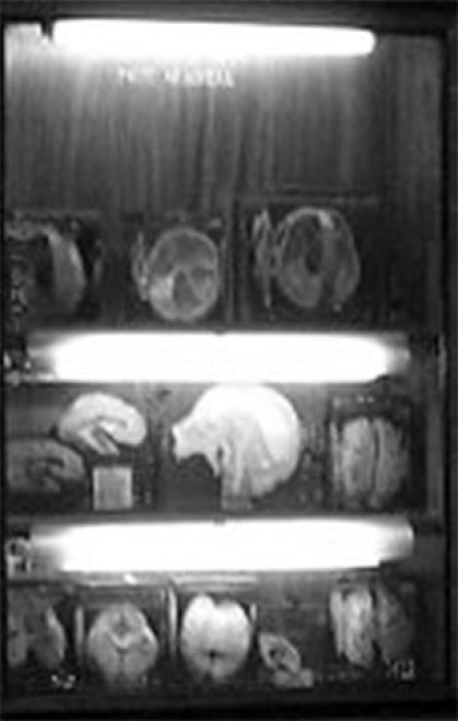 Fotografía del patreon de cerebros.