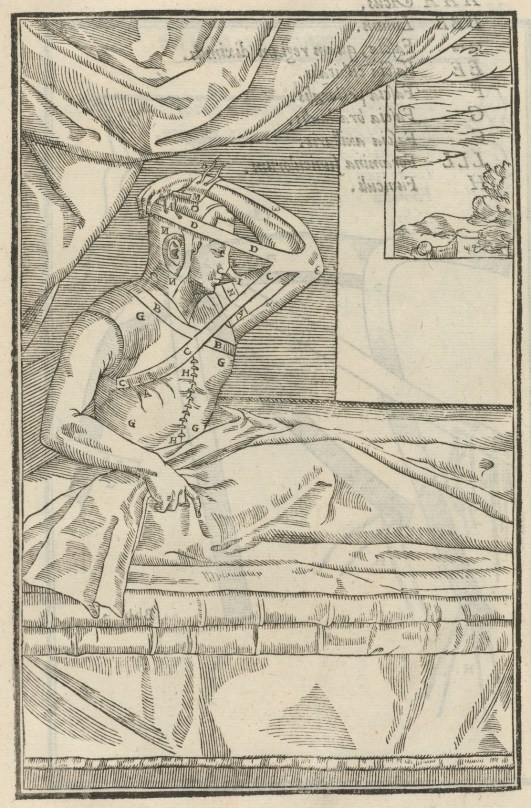 Imagen del De Curtorum Chirurgia per Insitionem. Un tratado pionero de la cirugía plástica