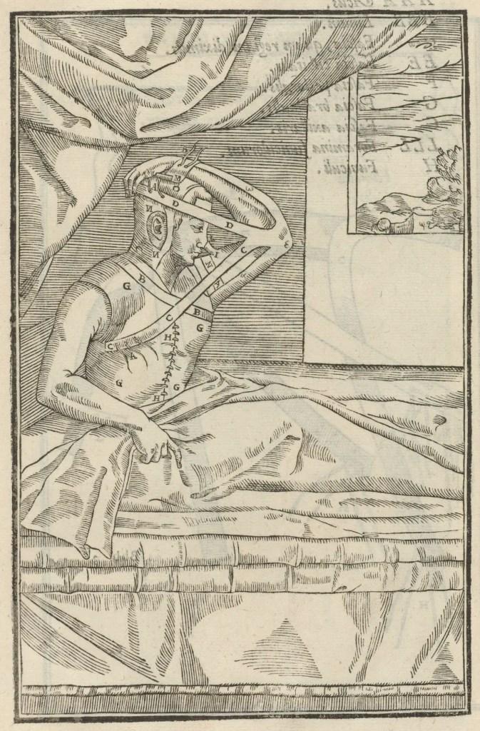 Imagen del De Curtorum Chirurgia per Insitionem. La cirugía plástica renacentista.