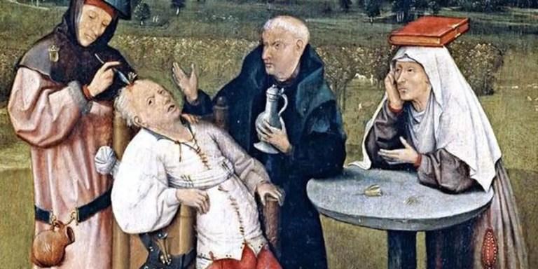 Pintura ilustrando la trepanación medieval.