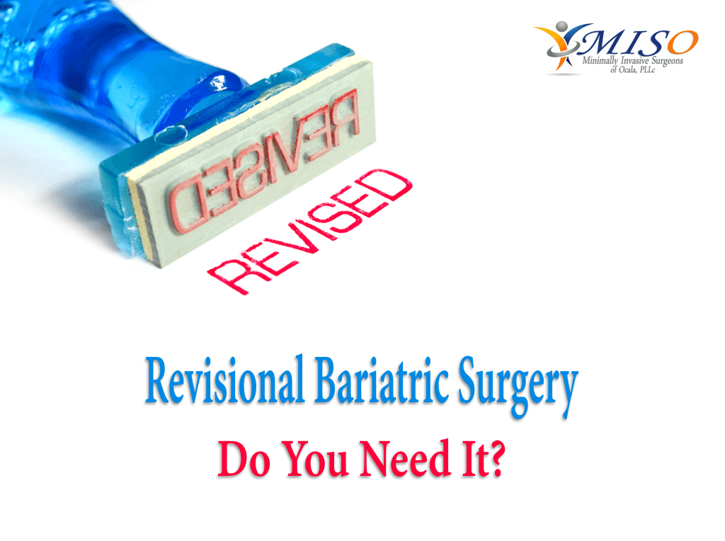 Revisional Bariatric Surgery Do You Need It