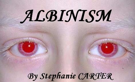 albinism is a genetic disorder that causes a melanin the substance responsible for the