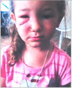 "Victim of ""Mugsy Malone"" attack."
