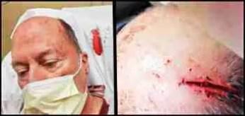 Steve Hindi's head injuries.