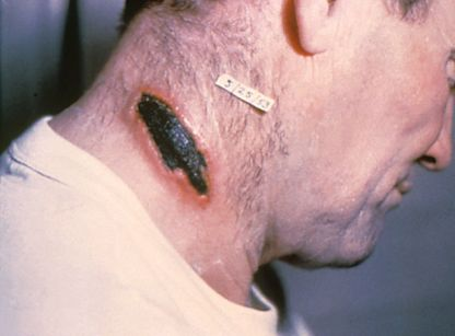 "An eschar, the hallmark of cutaneous anthrax, on the neck of a patient. The black color led the ancient Greeks to call the disease Anthrakis, meaning ""coal."""