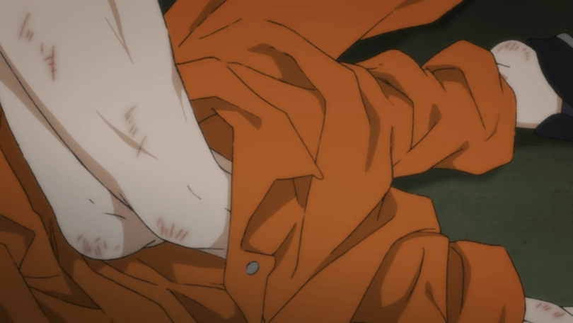 Ash's battered, partially unclothed legs
