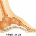 Problems Associated With High Foot Arches