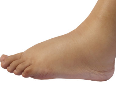 5 Reasons Your Feet Are Swollen Foot Care In Eagan