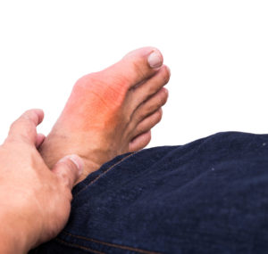 5 Common Causes of Big Toe Arthritis