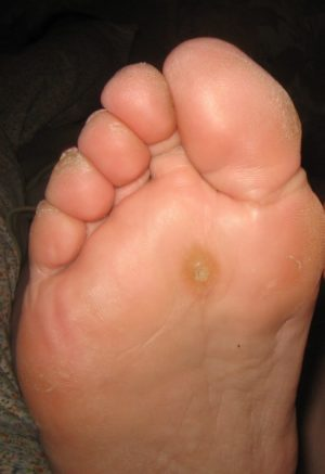 Treating Plantar Warts On Your Feet Hopkins Foot Specialist