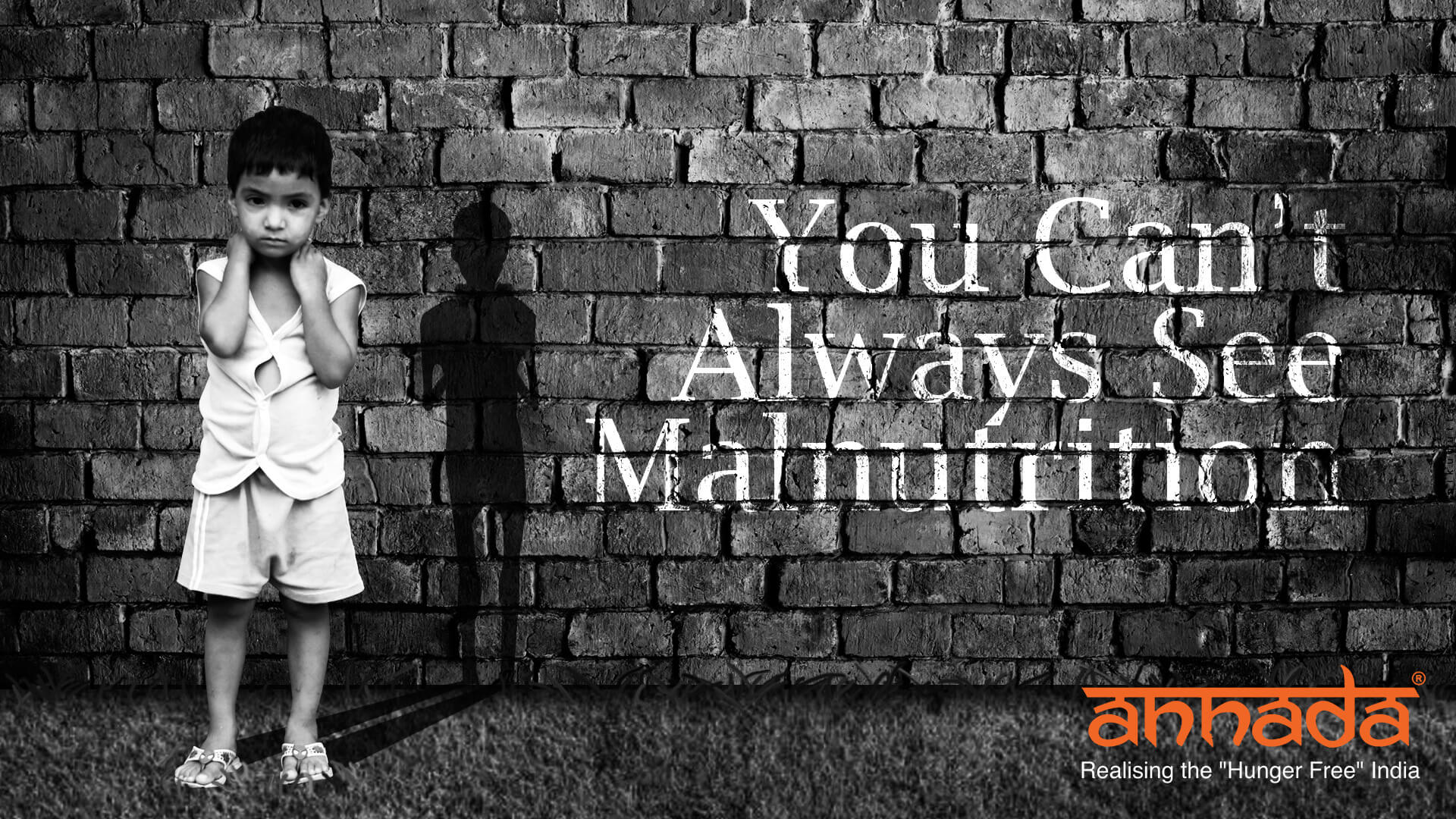 You Can't Always See Malnutrition