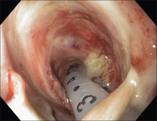 uried bumper syndrome presenting with hematemesis two