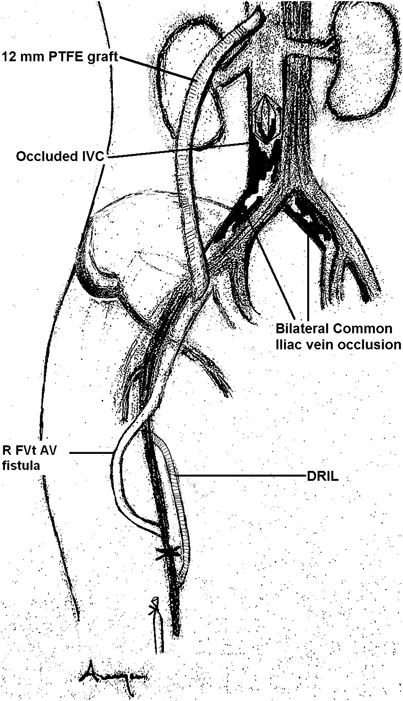 Combined Femoral Vein Transposition And Iliac Vein To