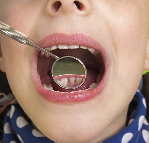 Cavities: How to Treat Them