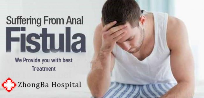 Question Absolutely anal fistula natural cures