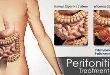 peritonitis gastroenterologist in lahore bawaseer ka ilaj piles treatment chinese specialist in lahore gastrointestinal specialist