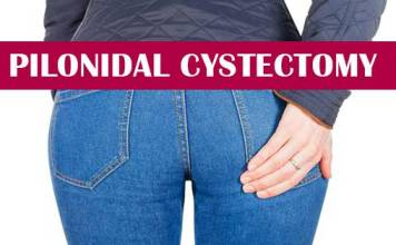 Pilonidal cystectomy gastroenterologist in lahore bawaseer ka ilaj piles treatment chinese specialist in lahore gastrointestinal specialist