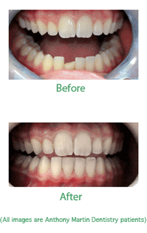 Bonding Cosmetic Restoration For Chipped Teeth In